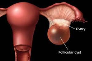 کیست تخمدان,درمان کیست تخمدان,جراحی کیست تخمدان