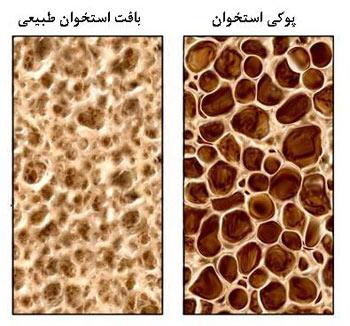 جلوگیری از پوکی استخوان,پیشگیری از پوکی استخوان,درمان پوکی استخوان شدید