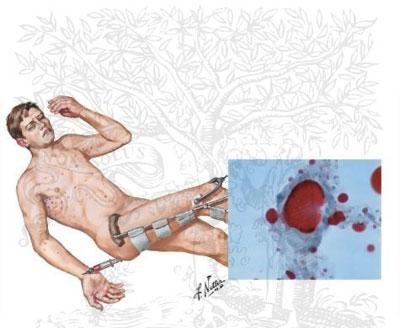 پیشگیری از آمبولی چربی , نارسایی احتقانی قلب