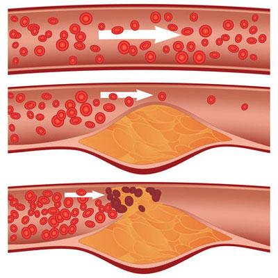 پیشگیری از آمبولی چربی ,لخته شدن خون