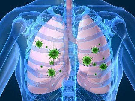 ریه,آمبولی ریه,بیماری ریه